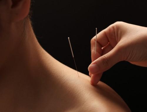 Overgangsklachten? Acupunctuur kan verlichten